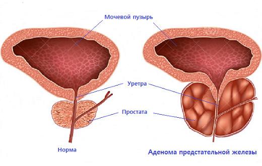 Лечение предстательной железы и препараты для профилактики
