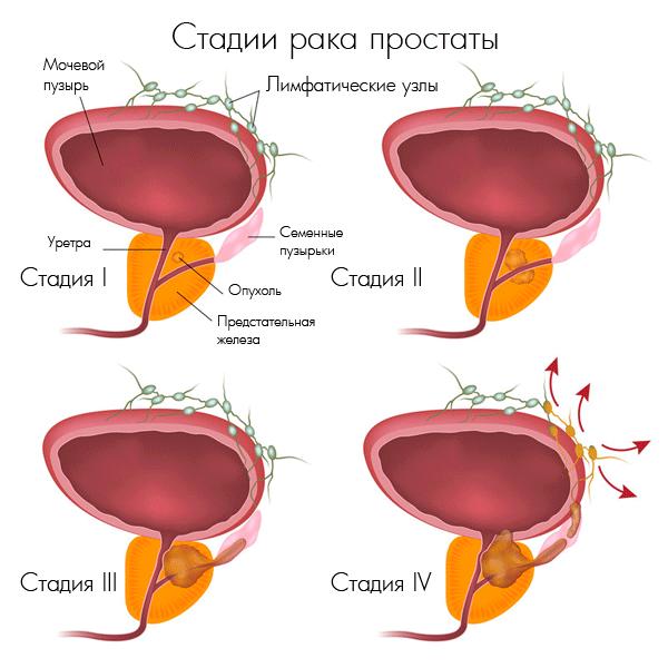 Рак предстательной желези: профилактика, симптоматика и прогнози