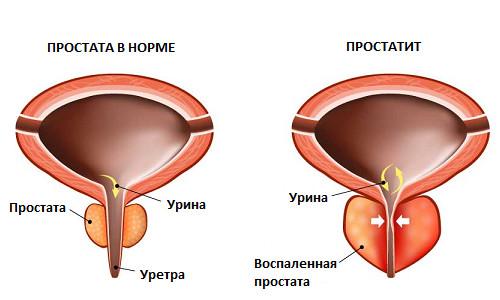 stroenie prostaty