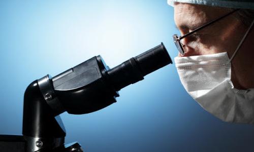 Analiz sekreta prostaty pod mikroskopom
