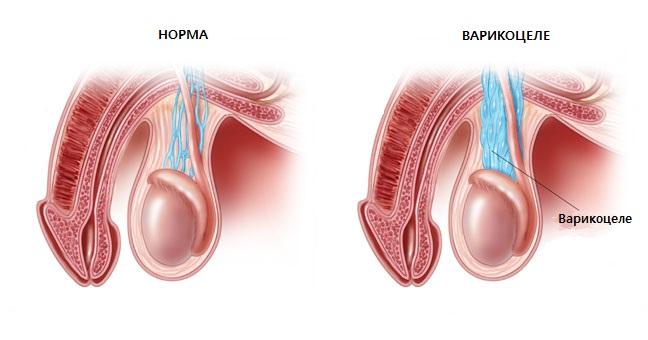 Что такое варикоз на ногах и как его лечить