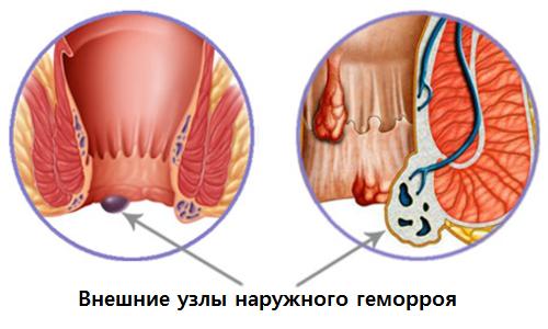 izbavitsya-ot-uzlov-gemorroya