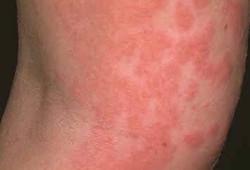 Dermatit u muzhchin