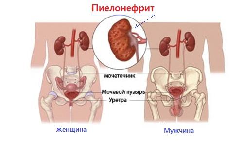 Pielonefrit u muzhchin