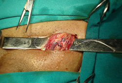 Varikocele operacija