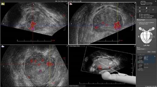 Биопсия предстательной желези: показания, техника проведения