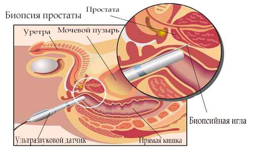 Shema biopsii predstatel'noj zhelezy