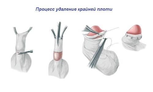 Скачать Программу Для Обрезания Фото - фото 7