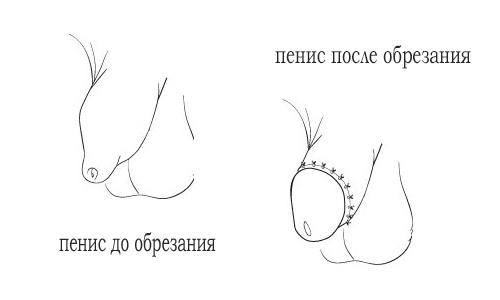 penis do i posle obrezanija
