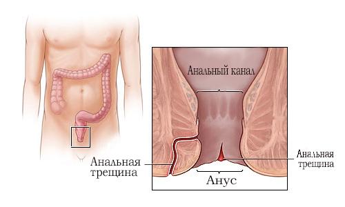 Anal'naja treshhina