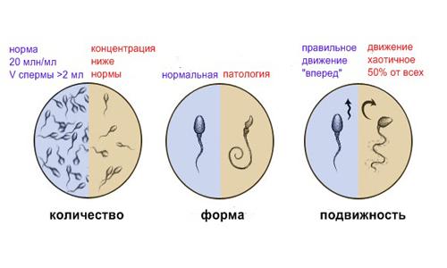 kachestva spermy po spermogramme