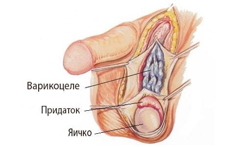 Варикоцеле левого яичка