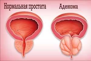 Лечение аденомы простаты без операции препараты свечи