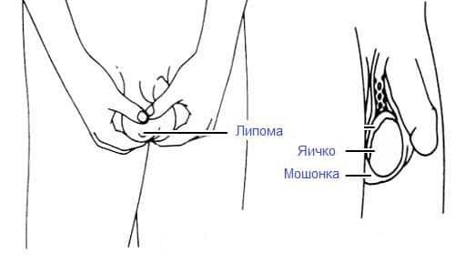 Операции по увеличению члена в иркутске