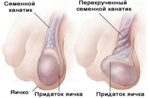Перекрут железы