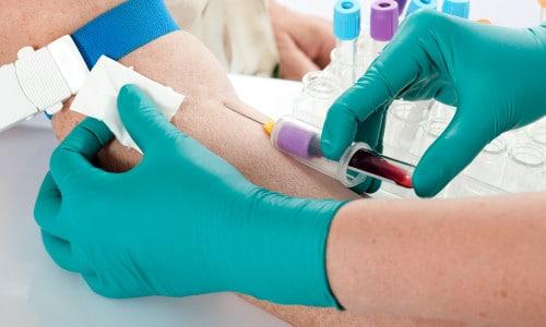Нужно регулярно сдавать кровь на анализ