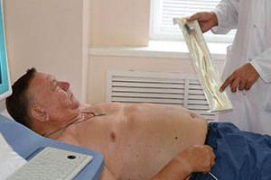 Емболизация варикоцеле, причини патологии, ход операции