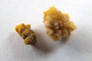 Вивести камни из почек и как, методи устранения заболевания