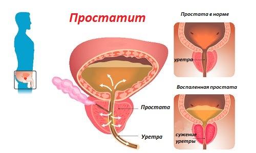 raspolozhenie prostaty